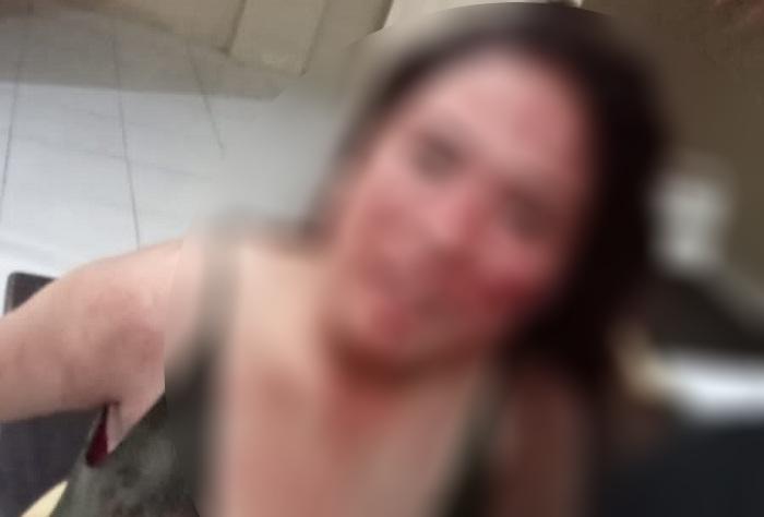 Dianiaya Teman Sejawat, Wanita Pelayan Cafe Pertanyakan Penanganan Perkara di Polsek Taliabu